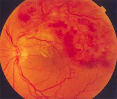 Branch Retina Vein Occlusion