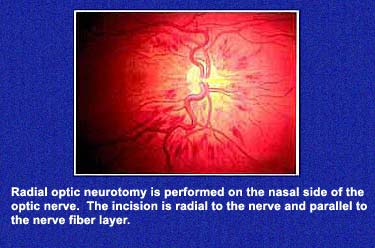 Radial Optic Neurotomy