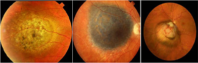 Malignant Melanoma of the Eye