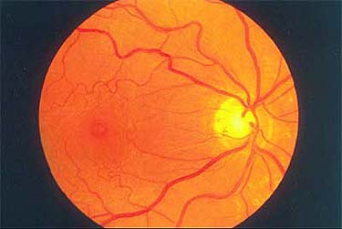 Macular Hole - Stage 1