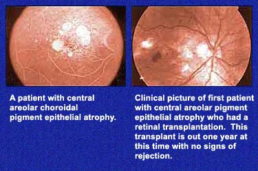 Central Areolar Pigment Epithelial Atrophy