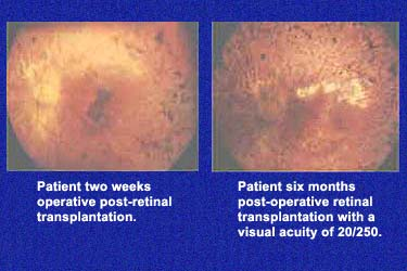 Post-Operative Retinal Transplantation